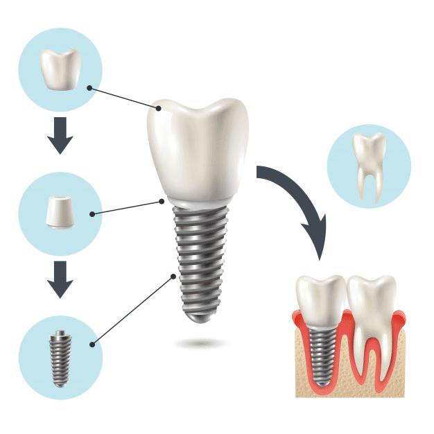 Implante dental en Huelva capital