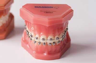 Tratamiento de Ortodoncia con brackets Damon