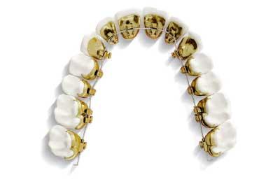 Tu tratamiento de ortodoncia con brackets linguales